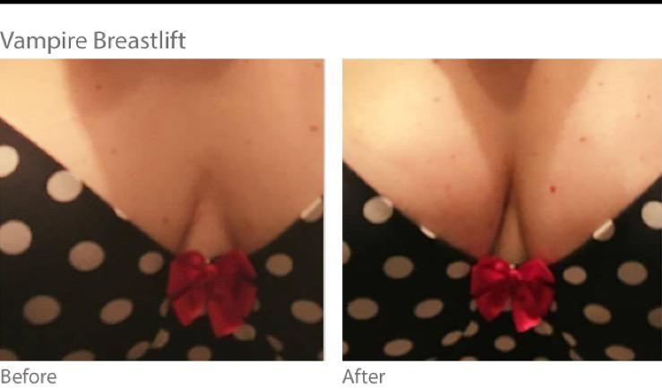 Vampire Breast Lift Certified Provider